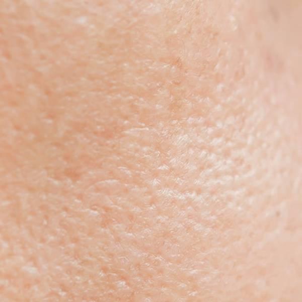 Pele com efeitos da acne