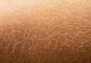 Cuidados com a pele desidratada