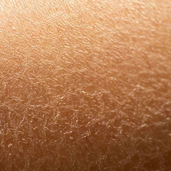 Artigo sobre a pele sensível - imagem principal